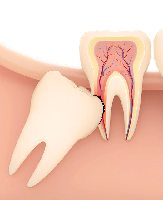 Wisdom Teeth pain and treatment